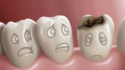mental,teeth,tooth decay,health