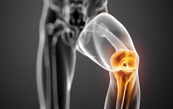 knee,Joint,pain